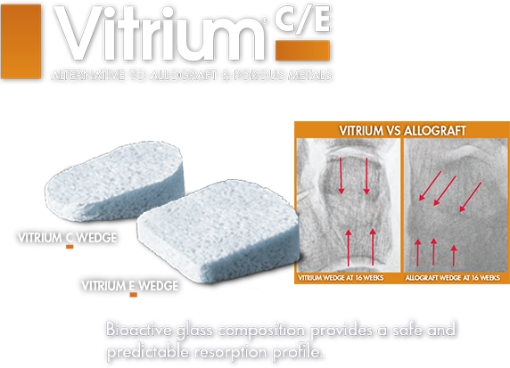 Vitrium - Lower Extremity allograft alternative bioactive glass c wedge and e wedge
