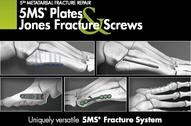 Metatarsal Fracture Repair - Plate Jones & Fracture Screws - Evans Surgical